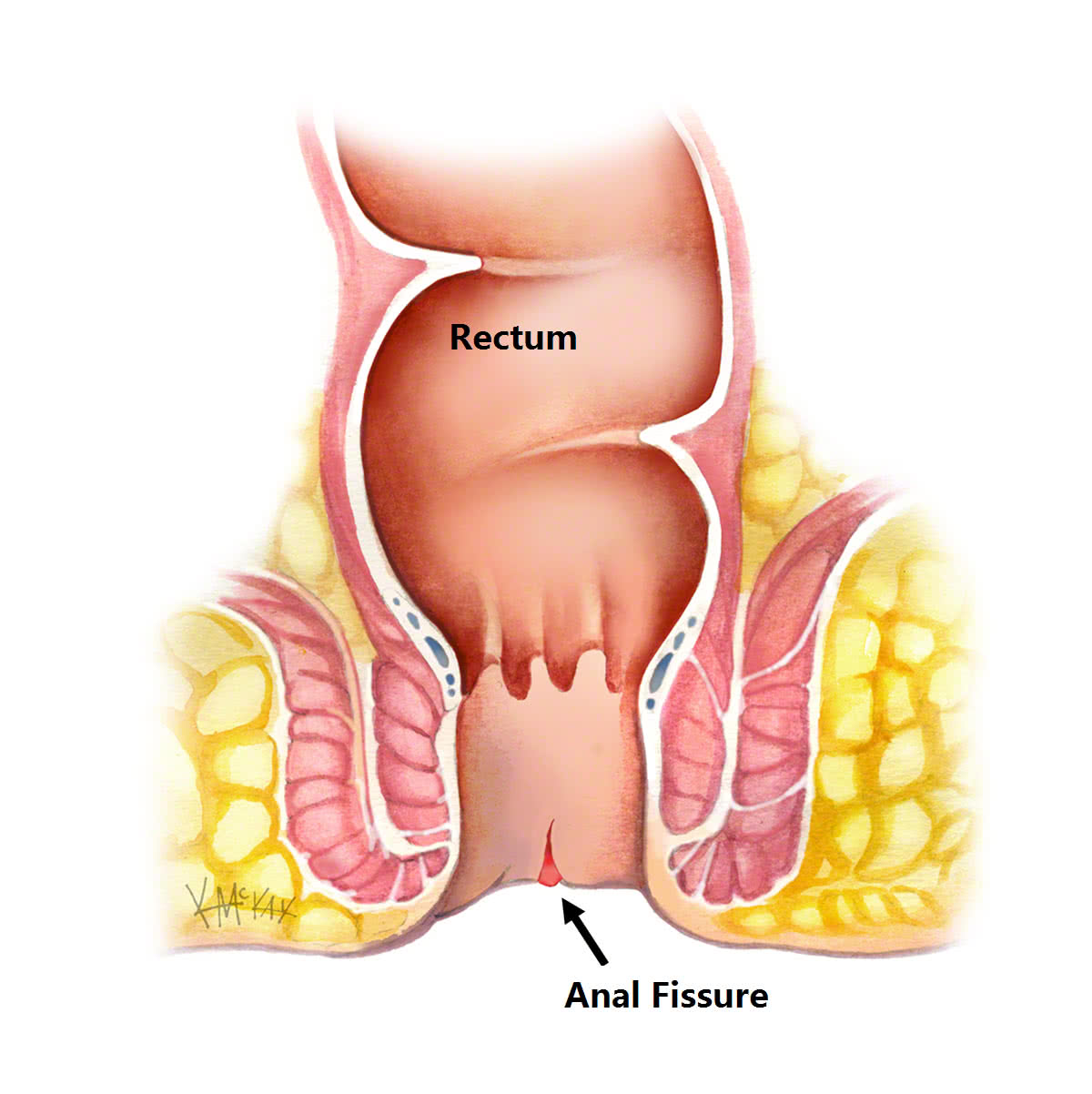What causes anal fissures