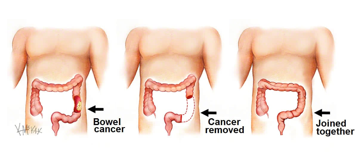 Bowel Cancer Colorectal Surgeons Sydney