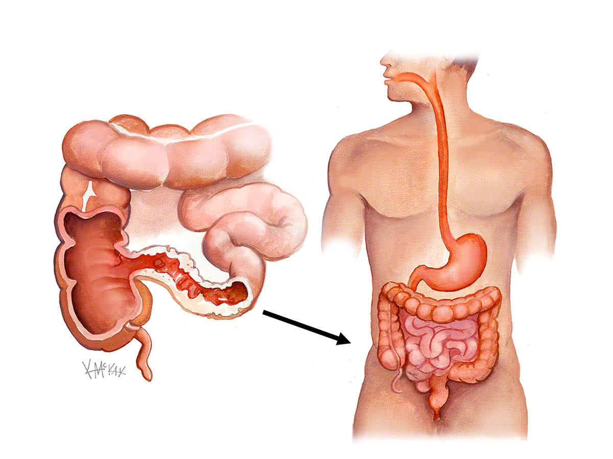 crohns disease Crohn's disease is a type of irritable bowel disease characterized by inflammation of the lining of the gi tract, abdominal pain, and more.