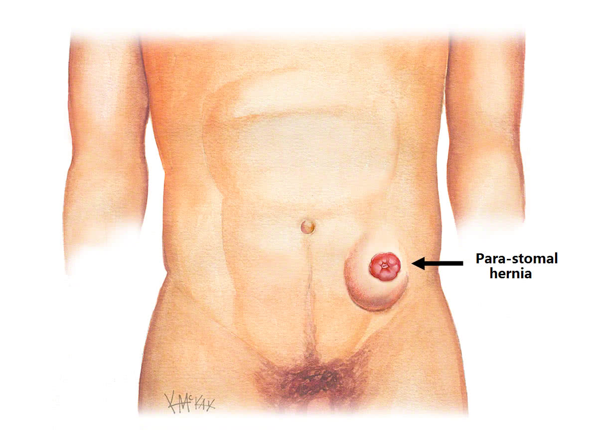 Stoma hernias colorectal surgeons sydney a stomal hernia also called a para stomal hernia is a type of incisional hernia that occurs next to a stoma it is a common problem pooptronica Image collections