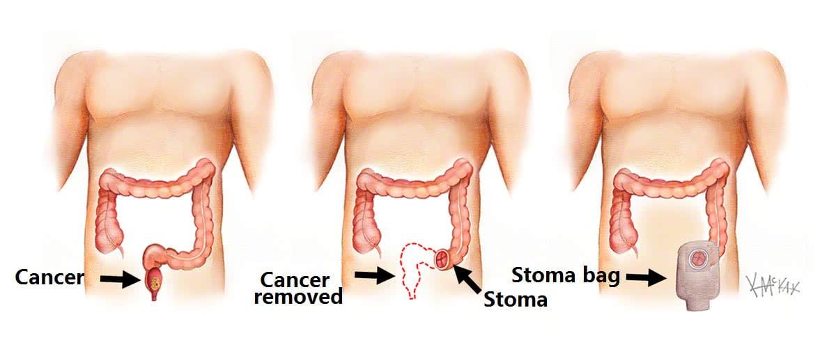 Bowel Surgery Colorectal Surgeons Sydney