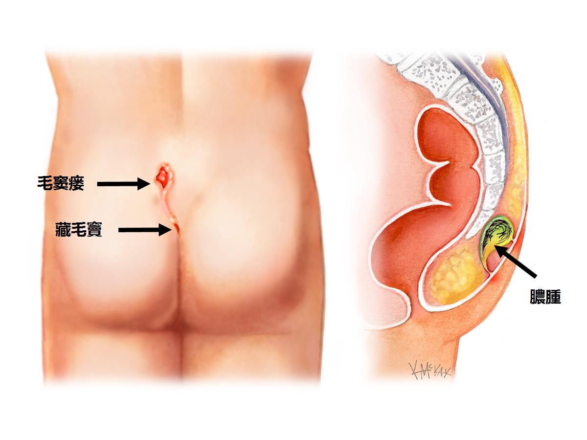 Steißbein Tumor