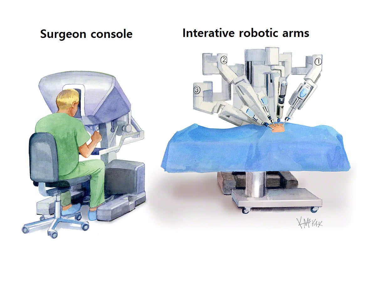 Robotic Bowel Surgery Colorectal Surgeons Sydney