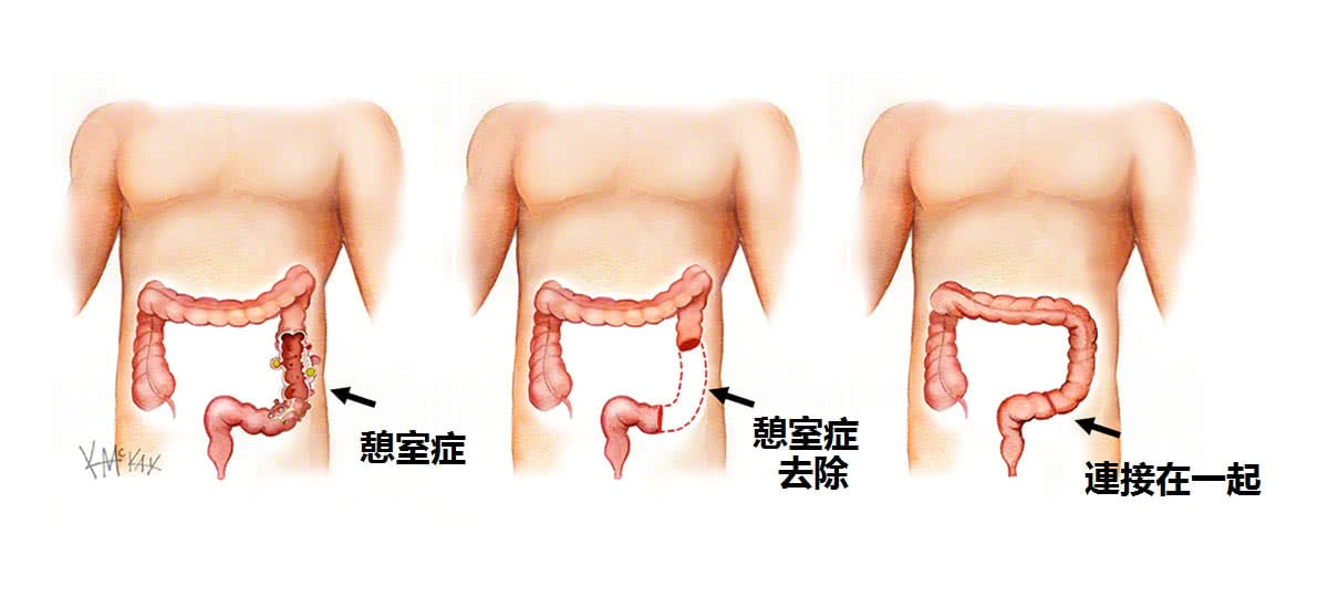 憩室 炎 原因 大腸